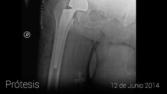 historial-clinico-googleglass4